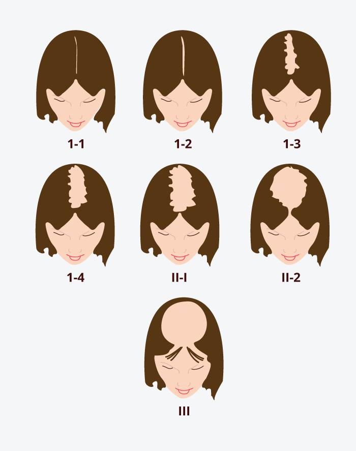 Chute de cheveux chez les femmes